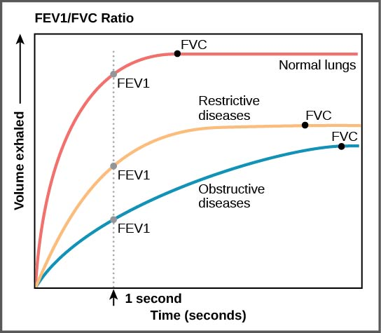 The graph plots volume exhaled versus time. In normal lungs, almost all of the air can be forcibly exhaled within one second after taking a deep breath, resulting in a curve that rises steeply at first then plateaus shortly after one second. The volume at which the plateau is reached is the FV C . In lungs of persons with restrictive lung disease, the F V C is considerably lower but the person can exhale reasonable fast, resulting in a curve that is similar in shape, but with a lower plateau, or F V C, than for normal lungs. In lungs of persons with obstructive lung disease, the F V C is low and exhalation is much slower, resulting in a flatter curve with a lower plateau.
